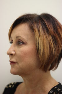 brow lift surgery in nashville